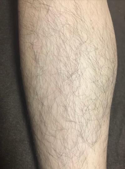 デリーモ(deleMO)使用前の脚のスネ毛