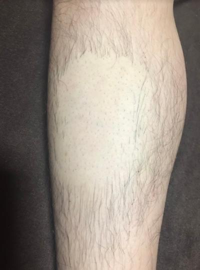 デリーモ(deleMO)を使用してスネ毛が一部分だけなくなっている脚