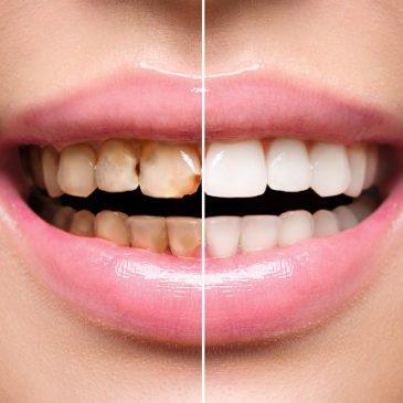 リリーホワイトの効果と評判をリサーチしました!歯が白くなるのは本当?