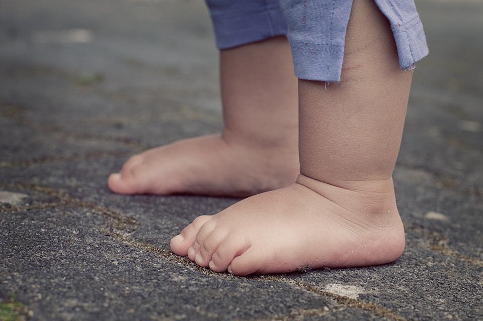 子どもの太い脚