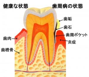 歯周病(要引用)