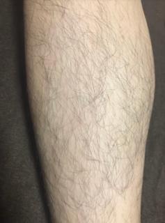 デリーモを塗る前の脚