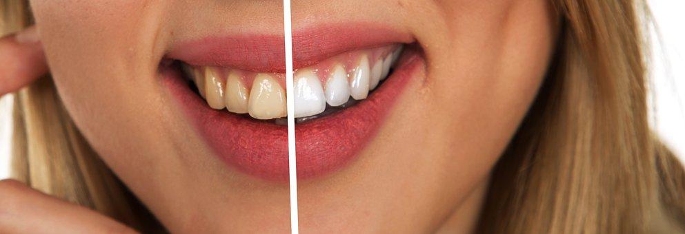 歯の色比較