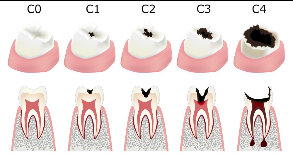 虫歯の進行(要引用)
